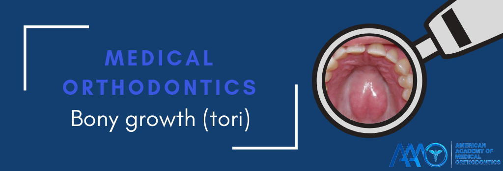 Tori Bony Growth Welcome To Medical Orthodontics